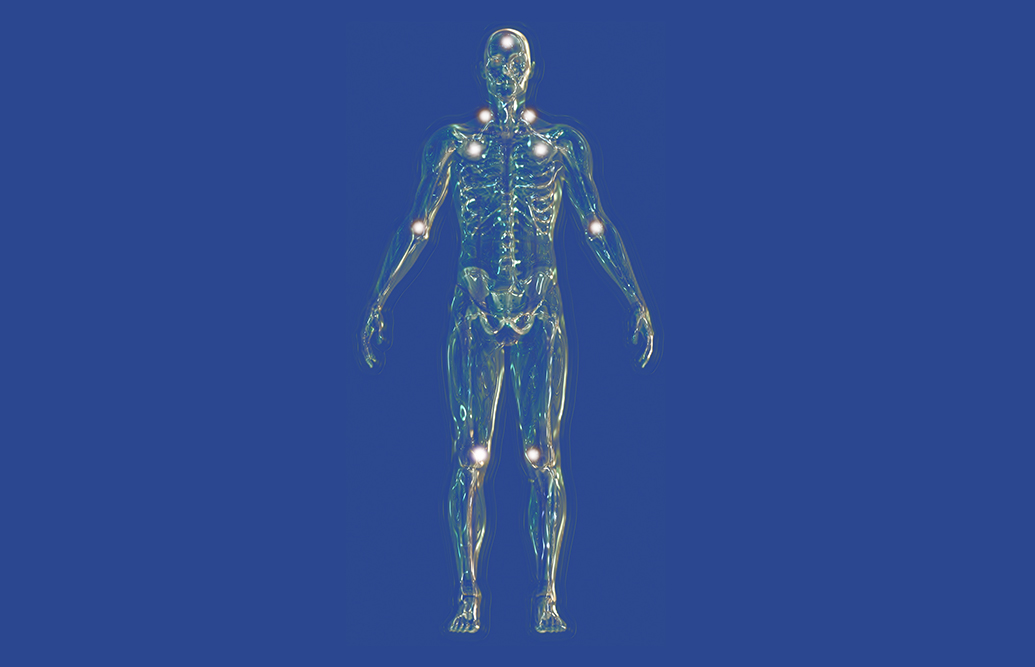 fibromyalgia pain points as discussed by Fish & Field Biokineticists in Bryanston, Sandton